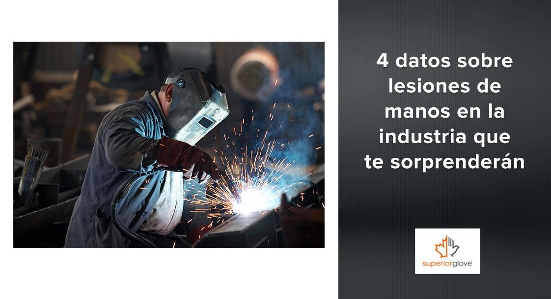 4 datos sobre lesiones de manos en la industria que te sorprenderán